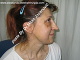 Result after facial fat grafting